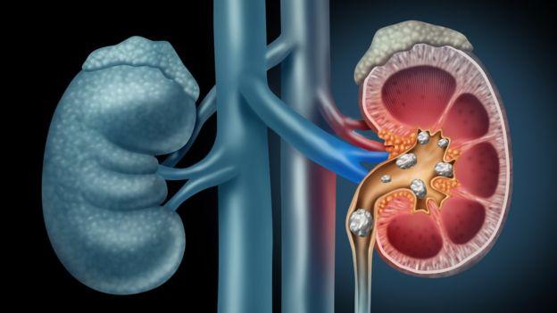 Hay 4 tipos principales de cálculos en el riñón.